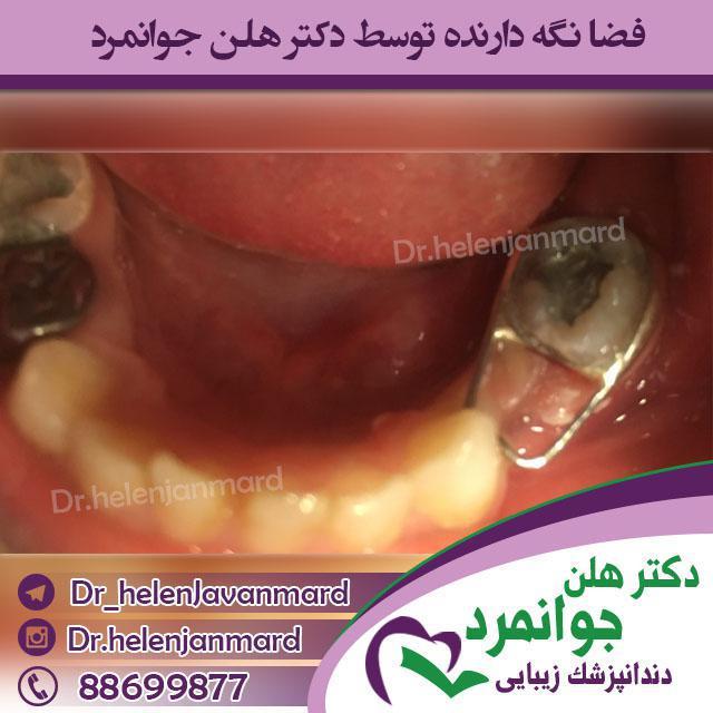 دندانپزشک کودکان خوب - فضا نگه دارنده ها