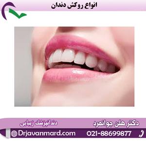 انواع روکش دندان0 (0)