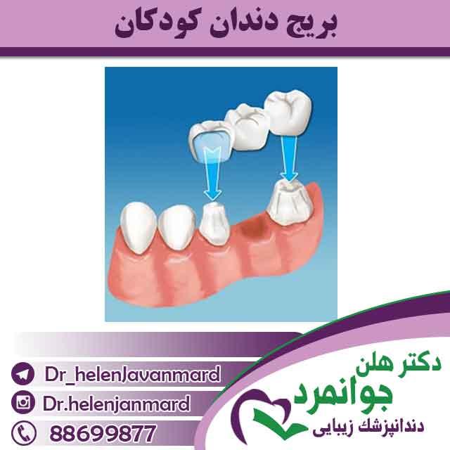 بریچ دندان در کودکان