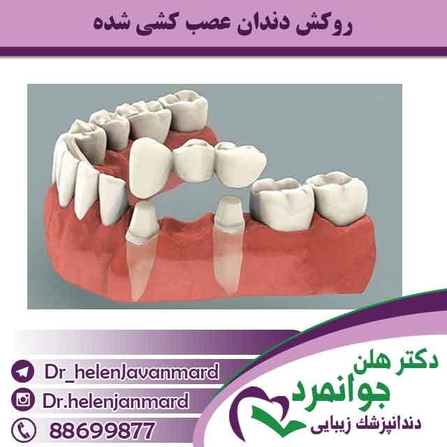 روکش دندان عصب کشی شده توسط دکتر هلن جوانمرد
