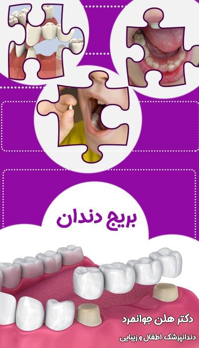 بریج دندان اطفال