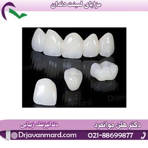 مزایای لمینیت دندان