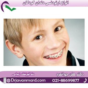 انواع ارتودنسی دندان کودکان0 (0)