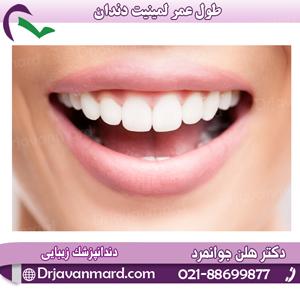 طول عمر لمینیت دندان