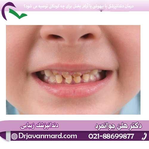 درمان دندانپزشکی با بیهوشی یا آرام بخش برای چه کودکانی توصیه می شود؟