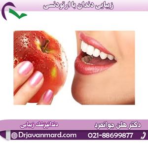 زیبایی دندان با ارتودنسی