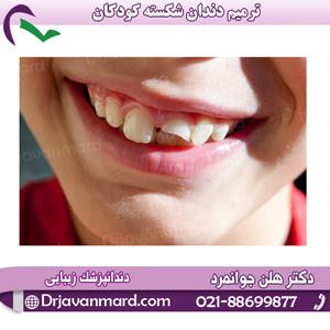 ترمیم دندان شکسته توسط دکتر هلن جوانمرد
