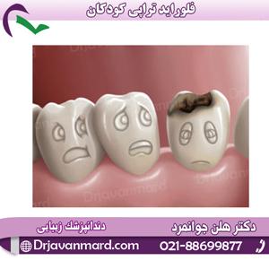 پیشگیری از پوسیدگی دندان با فلورایدتراپی0 (0)