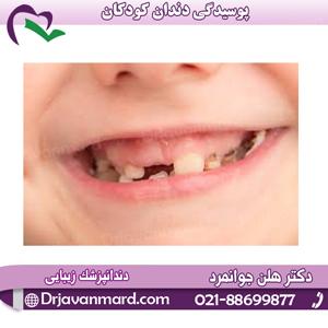 پوسیدگی دندان کودکان با دکتر جوانمرد