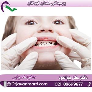 پوسیدگی دندان کودکان با توضیحات دکتر جوانمرد