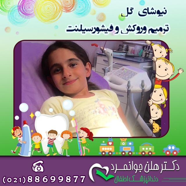 دندانپزشک در غرب تهران - دکتر هلن جوانمرد