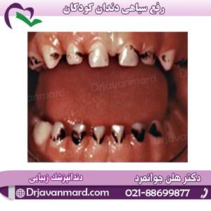 رفع سیاهی دندان کودکان با دکتر هلن جوانمرد