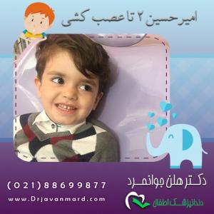 مراقبت از دندان شیری به همراه عکس امیرحسین با 2 تا عصب کشی
