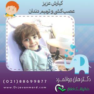 رادیوگرافی دندان کودکان - کیارش عزیز در هنگام عصب کشی و ترمیم دندان
