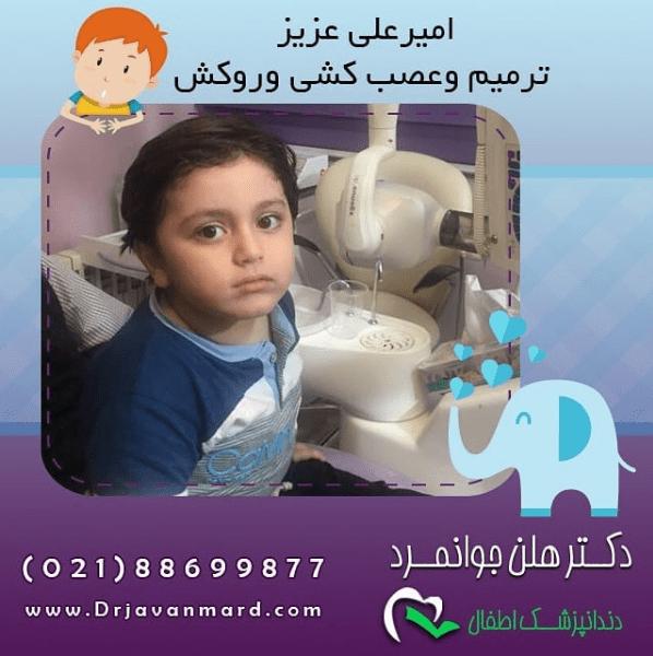 عوارض بیهوشی در دندانپزشکی کودکان - امیر علی عزیز با ترمیم و عصب کشی