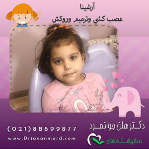 عوارض بیهوشی در کودکان در هنگام عصب کشی و ترمیم روکش