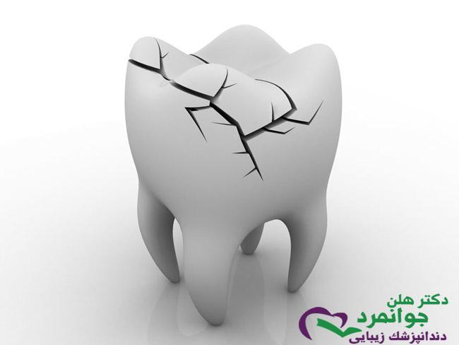 دندان شکسته کودکان