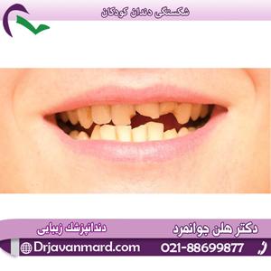 شکستگی دندان کودکان با دکتر هلن جوانمرد