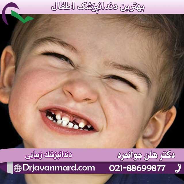 علت دندان قروچه کودکان
