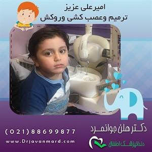 نمونه ای از عصب کشی دندان شیری