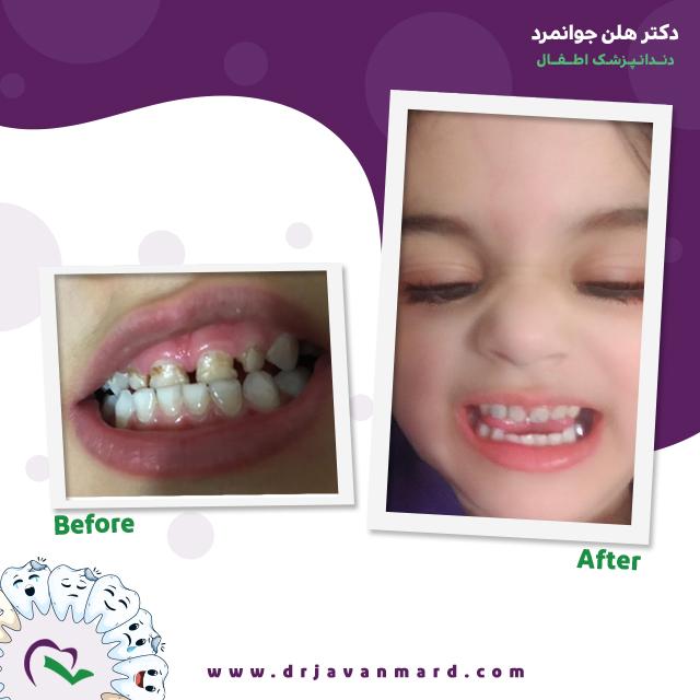 زیبایی دندان های اطفال