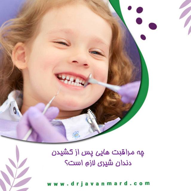 بعد از کشیدن دندان های شیری کودک، چه مراقبت هایی لازم است؟0 (0)